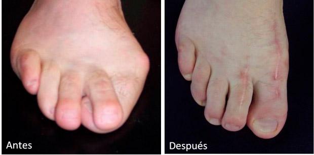 Antes y después de una cirugía del antepié