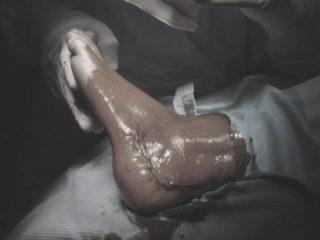 Cirugía del retropié