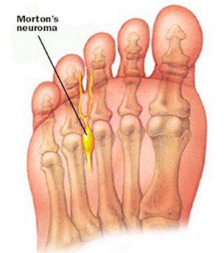 Neuroma de Morton
